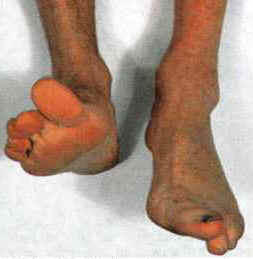 Can lupus cause drop foot?