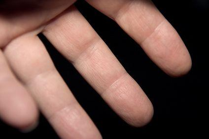 How to keep a finger tip that was cauterized chemically , clean and healing properly?