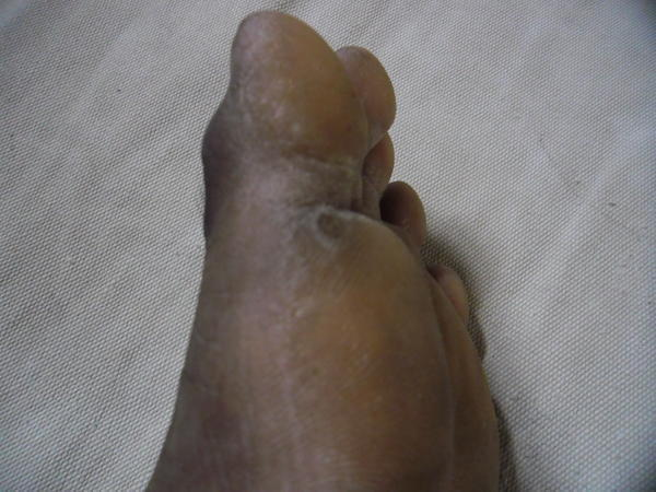 What is the best remedy for a foot fungus?