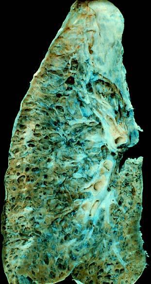 Is pulmonary fibrosis related to fibromyalgia?