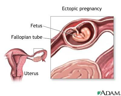 Is it ectopic pregnancy?1 mo. Spotting and palpitation, bck pain, increased pulse rate, constipated, feel sick, fatigued, discomfort in abdomen, nausea&vomit