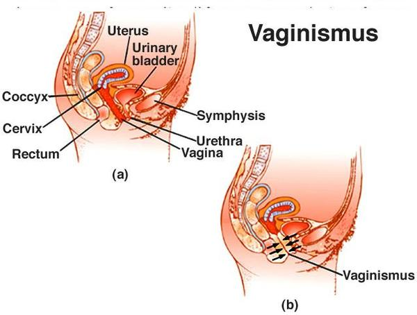 What is the treatment for vaginal muscle spasms?