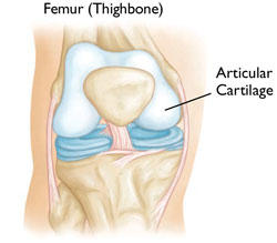 What can I do about knee arthritis?