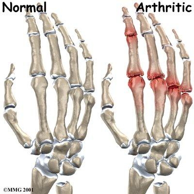 How can someone get reactive arthritis?