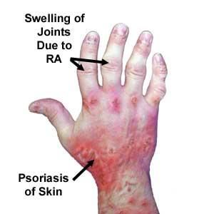 What can I do to treat psoriatic arthritis?