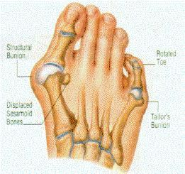 What are  procedures to get rid of the bunion?