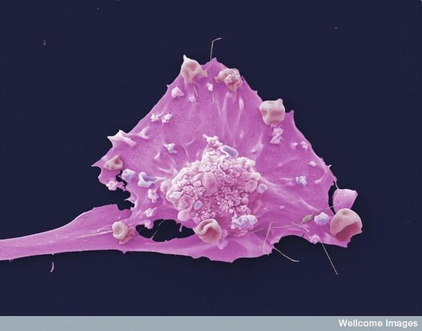 What is metastatic breast carcinoma?