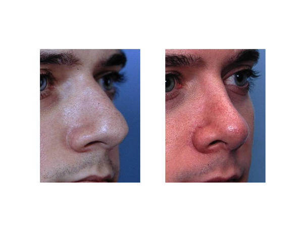 Is it safe to do physical contact sports after a septorhinoplasty?