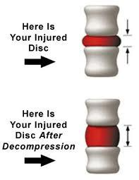 What does spinal decompression do to help with back pain?