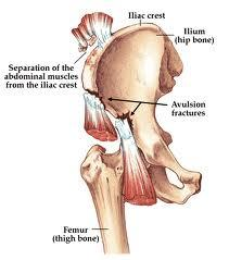 What is a hip avulsion fracture and how is it treated?