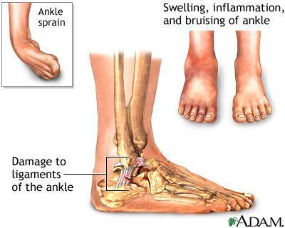 I have had a sprained ankle for three weeks and its still mildly swollen and causes me some pain  some pain what should I do?
