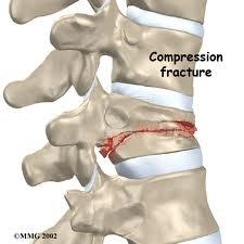Could you describe a spinal fracture?