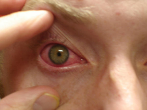 What eye drops can be used on conjuntivies?