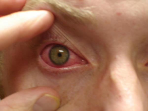 Eye Drops For Shingles Answers On Healthtap