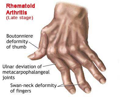 What can I do to relieve the pain from rheumatoid arthritis?