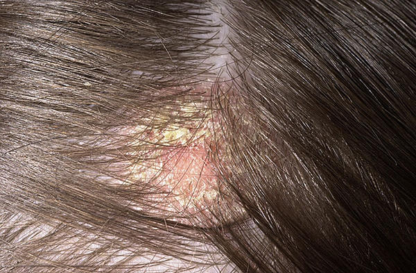 Does burning with seborrheic dermatitis mean more hair will fall out? I had a flare up and am using clobetasol. Scalp feels tight and pink in place