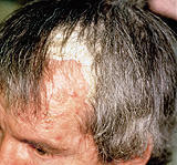 My seborrheic dermatitis is flared up on my scalp and it feels tight. And burning. Does that mean I will lose more hair? I did use the. Clobe.