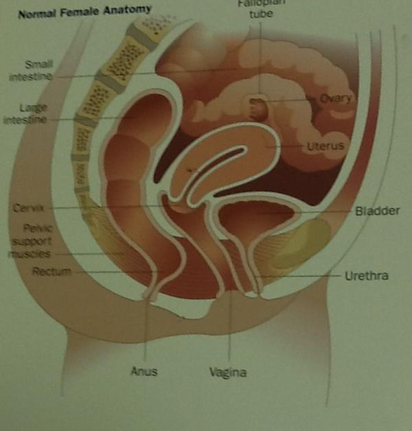The left lower part of my stomach hurts after sex ?