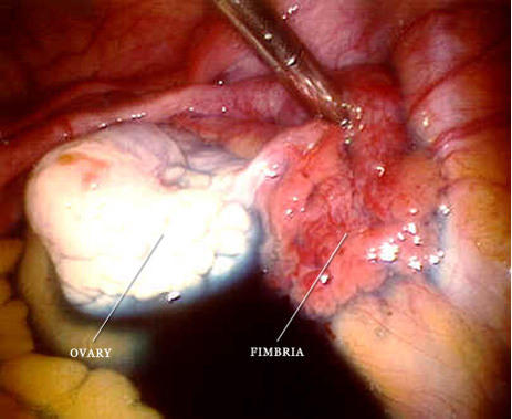 Is there a surgery for the placement of artificial fallopian tube in human and where?