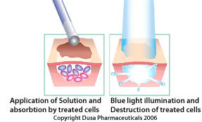 What are the effects of photodynamic therapy?
