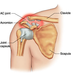 What is acromioclavicular arthropathy?