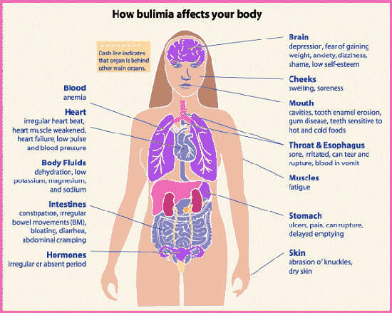 I'm bulimic and have gastroenteritis. Can i die from it and how long will it take me to die if its really severe  pain?