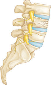 Can a compression fracture of the L1 in the back cause permanent pain?