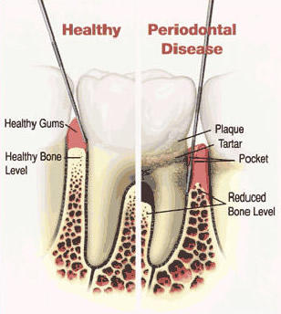 How quickly does gum disease spread?