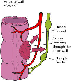 Does chemotherapy and radiation help reducing the reccurence of colon cancer t4?