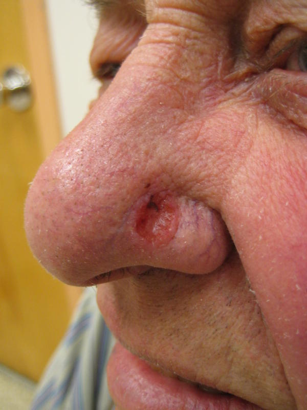 Why is basal cell carcinoma considered the least invasive of all cancers?