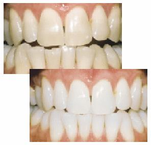 Should i be having pain after using teeth whitening/bleaching given by my dentist?