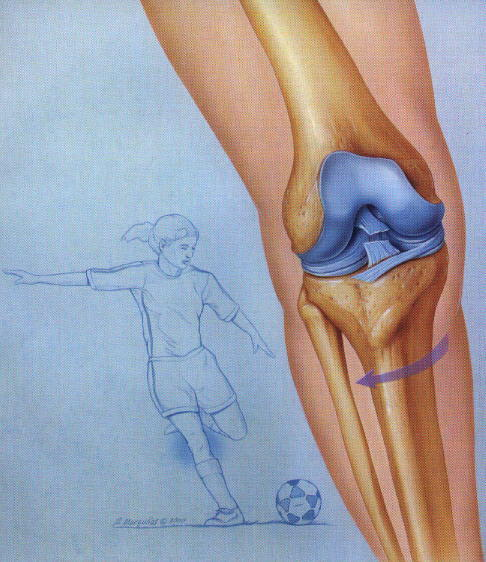 What options exist for rehab after arthroscopic anterior cruciate ?