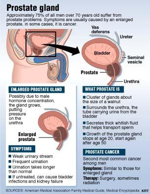What is the definition or description of: prostate?