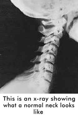 Hi a friend of mine told me that when a doctor wants to find out if a person has dissociative identity disorder they take a X-ray of the neck?