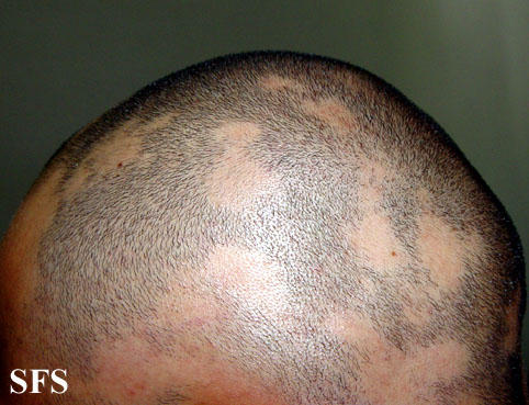 I lost my beard hair .Then how to know that I have fungus or alopeaaretia?
