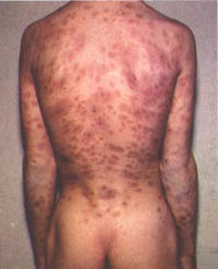 Im sorry if this is a stupid question. But is there any STD with the symptom of a rash over the whole body?