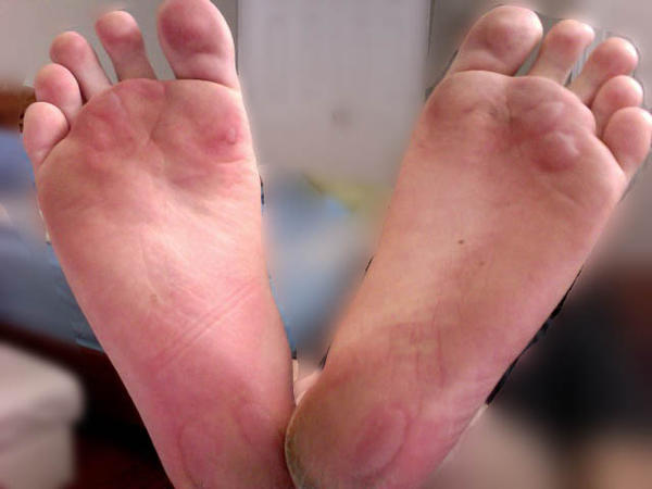 How do I care for foot blisters from running?