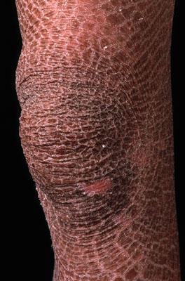 What are the chances of getting ichthyosis?