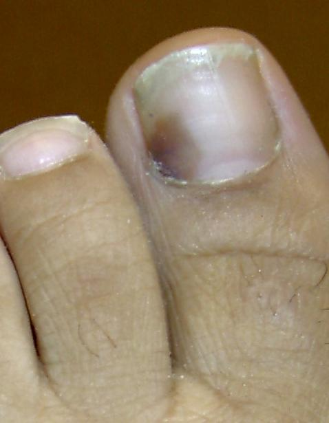 A drawer fell on my big toe and now underneath the toe nail is blackish blueish, what should I do?