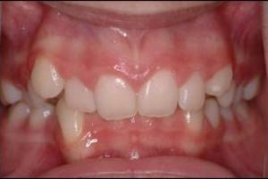 What is the definition or description of: overbite?
