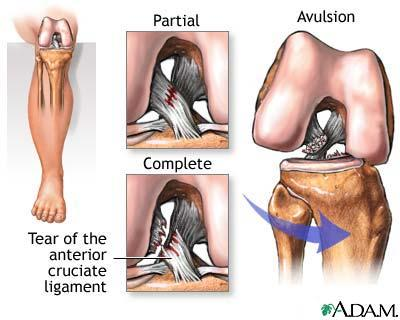 What is the definition or description of: ligament tear?