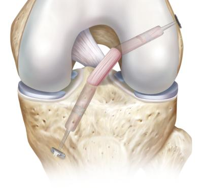 How do you treat an anterior cruciate ligament injury?