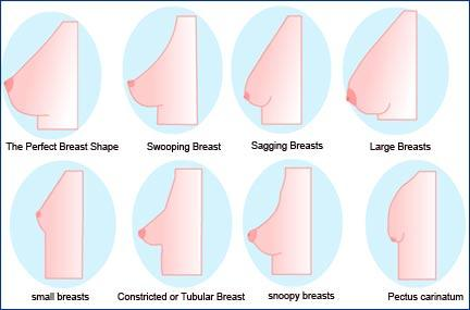 C Cup Size Breasts - Doctor insights on HealthTap