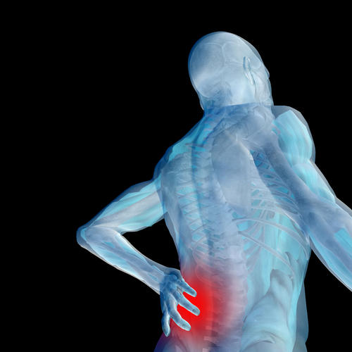 What are signs of spinal arthritis?