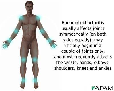 What causes a rheumatoid arthritis to show up?