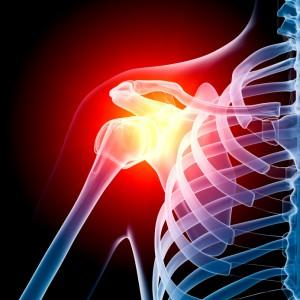 How do I know if it is tendinitis, arthritis, or other in the shoulder?