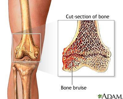 How can I alleviate pain caused by my bone bruise?