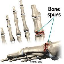 What is the definition or description of: bone spurs?