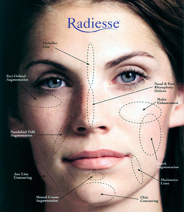 Is it possible for radiesse (dermal fillers) to harden on the face and cause pain?