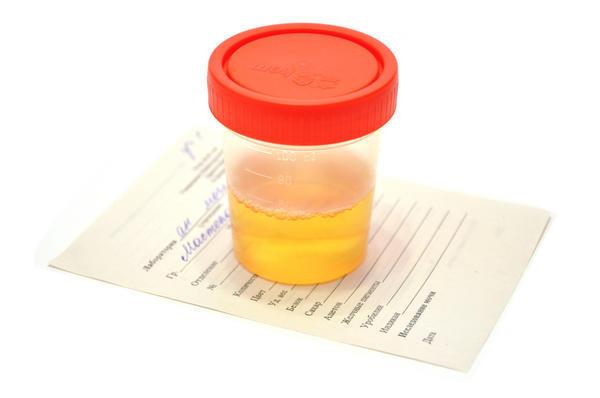 35 weeks pregnant my wee smells like orange?